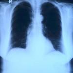 Attenzione all'ipertensione polmonare
