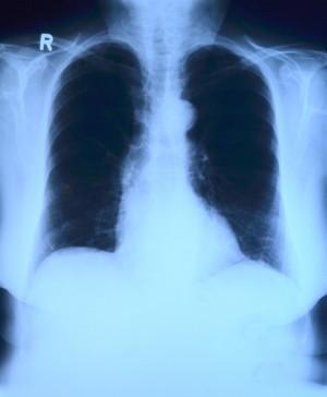 x-rpolmoni radiografia